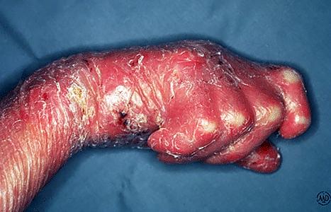 Inherited Skin Condition