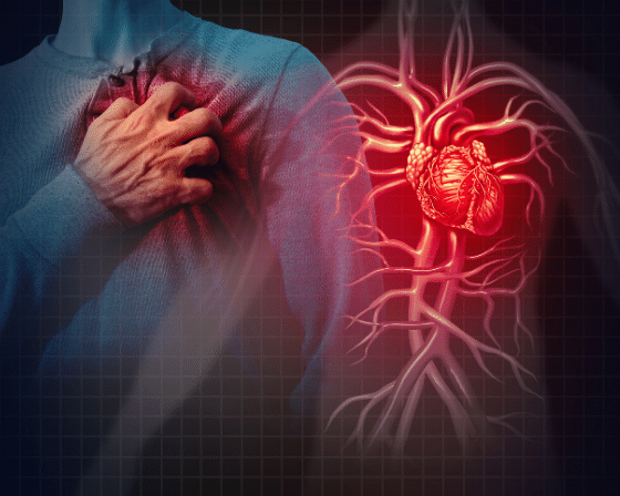 Cardiovascular disease its Symptoms, Risk Factors and Treatment