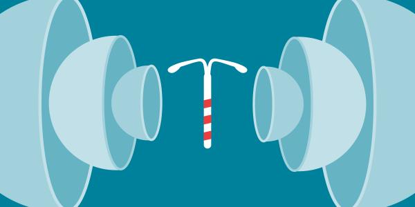 An illustration of an IUD.