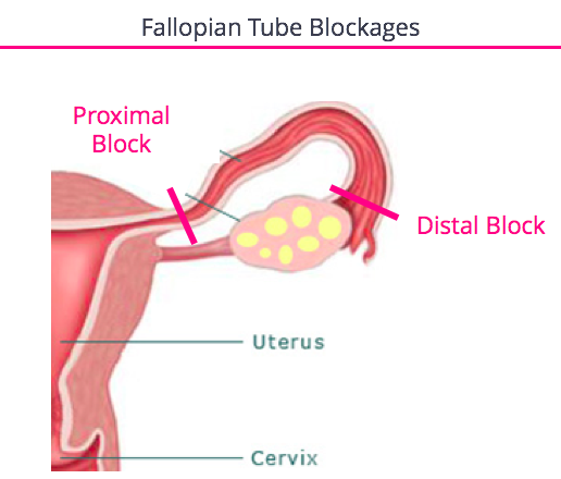 IUI Tubal Blockage