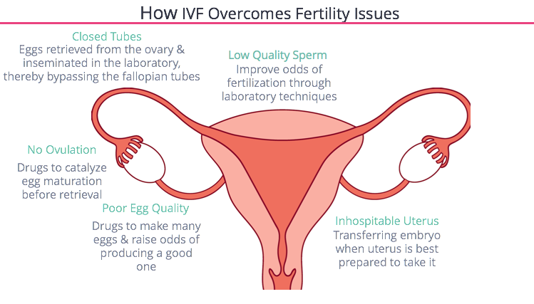 IVF Fixes of Natural Conception