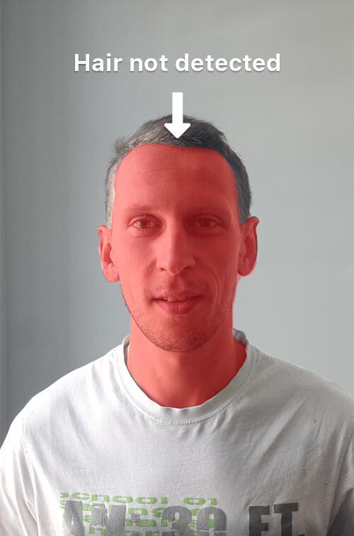 hair not detected