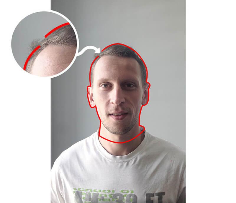 Unconnected contour