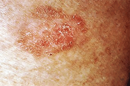 Close-up of a squamous cell carcinoma of the skin