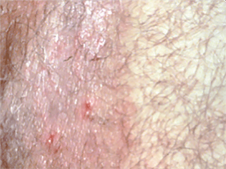 A ringworm infection in the groin