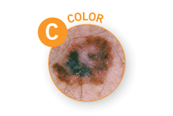 Public>Diseases>Skin-cancer>Types>Melanoma>Symptoms>Color