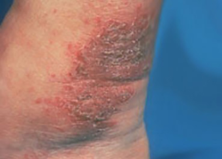 Eczema Types Nummular Dermatitis Tips For Managing