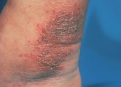 A patch of nummular dermatitis on a patient's ankle.