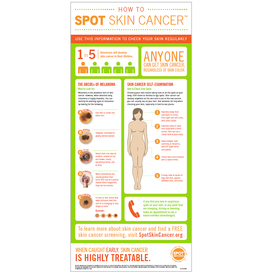 Use the information in this infographic to check your skin regularly.