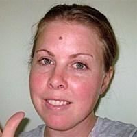 Public>Public-health>Skin-cancer-awareness>Story>Margie-Gunn