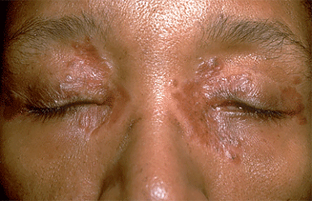 Woman with tiny, smooth bumbs of sarcoidosis on face