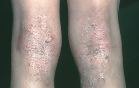 Atopic dermatitis: thickened skin on the back of her knees