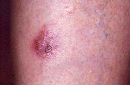 Stasis dermatitis on the lower leg