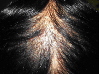 scalp with alopecia scarring