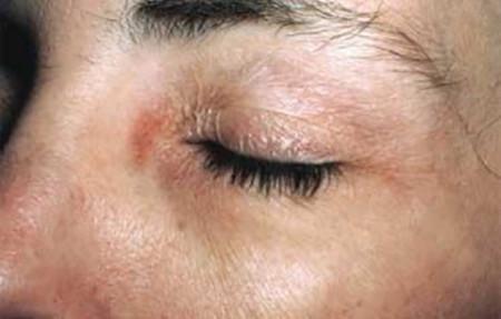 Contact dermatitis on eye