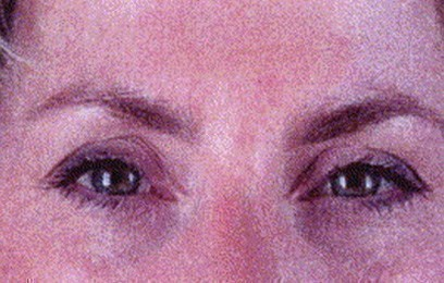 Patient after botulinum toxin treatment
