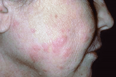 Subacute cutaneous lupus causes the skin to be sensitive to sunlight