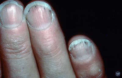 Red or purple lines under nails