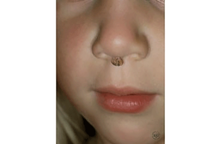 A wart under a child's nose