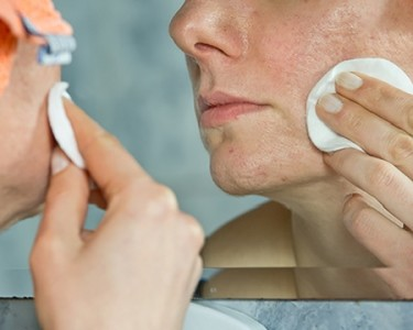 Woman treating acne pustules