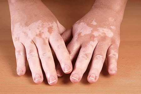 Close-up of hands with vitiligo depigmentation.