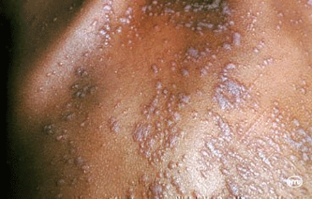 Several lichen planus skin bumps on a person's back
