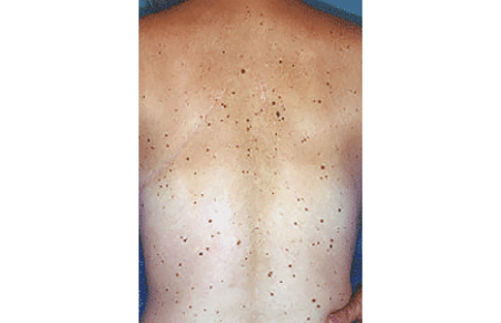 50-plus moles on the back of a man