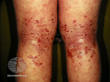 atopic dermatitis on knees
