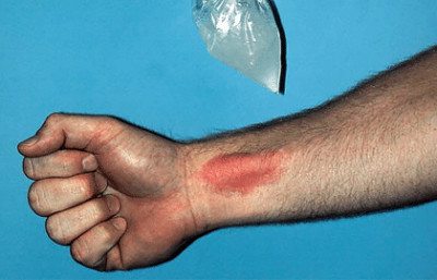 Welts on skin from cold are called urticaria hives