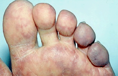 Blue toe syndrome