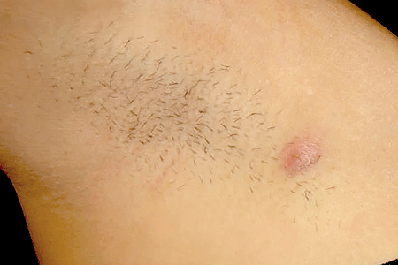 Hidradenitis suppurativa nodule on an armpit.