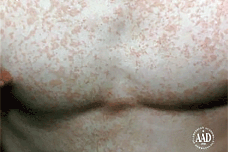 Tinea versicolor on a man's chest