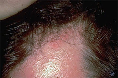 Reddish, oily-looking patches on the face and scalp