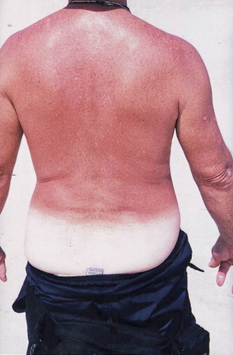DWII illustration of sunburn