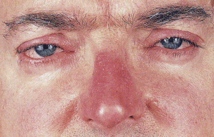 Man with rosacea on eyes and nose