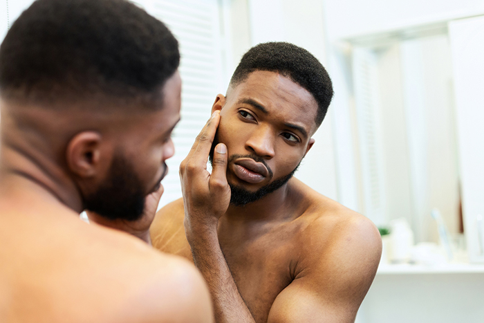10 tips for clearing acne in skin of color