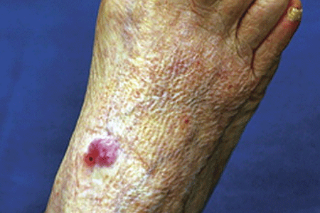 Merkel cell carcinoma on the inner ankle area of patient's foot