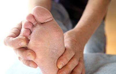 Athlete's foot can cause tiny cracks in the skin