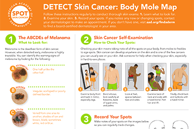 AAD's body mole map infographic thumbnail
