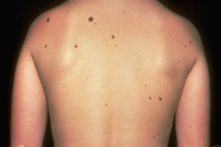 Atypical moles on a patient's back
