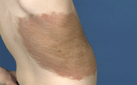 Large mole on a 4-year-old boy