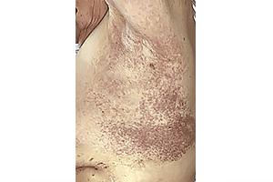 Itchy coronavirus rash