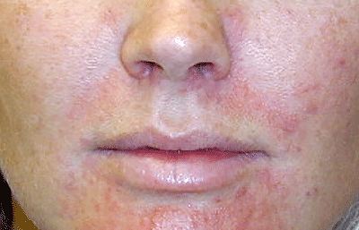 Woman with perioral dermatitis