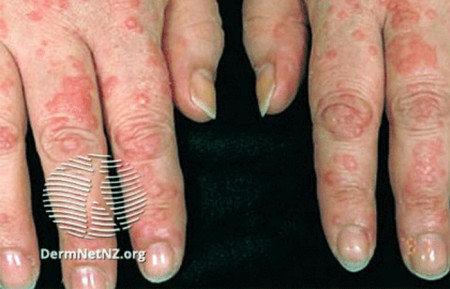 Close-up of hives on hands