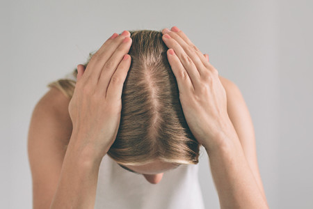 Woman showing the part in her hair