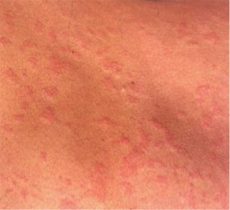 picture of hives