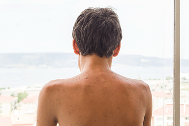 Back Acne How To See Clearer Skin