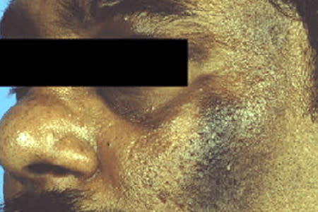 Obese man with acanthosis nigricans on his face