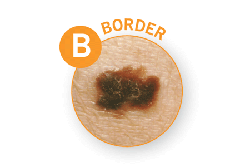 Public>Diseases>Skin-cancer>Types>Melanoma>Symptoms>Border