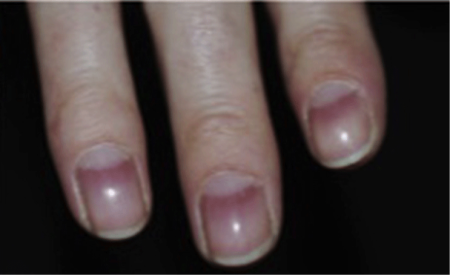 alopecia symptoms on fingernails